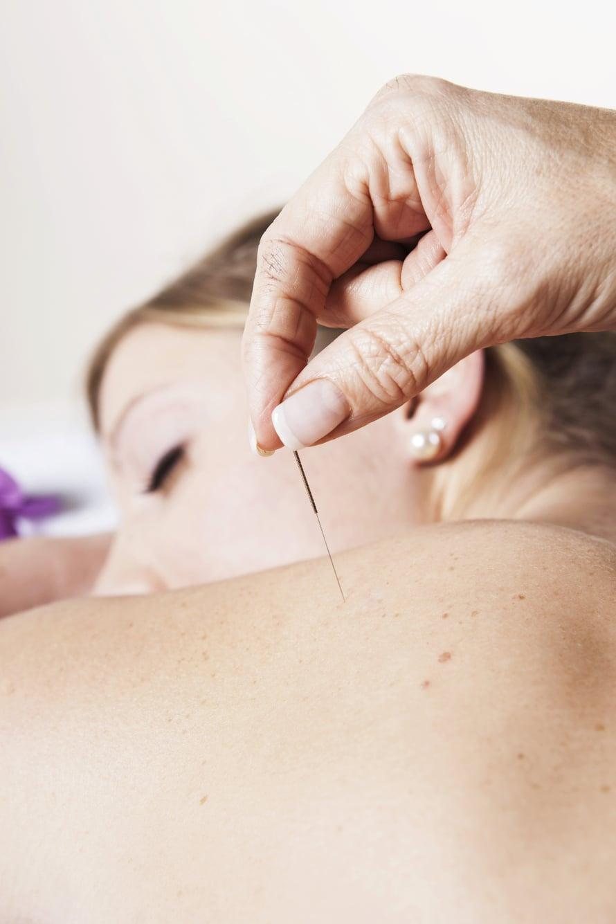 Suomessa lääkärit ovat perinteisesti hoitaneet akupunktiolla kipua. Siitä hoito on laajentunut muun muassa allergioihin ja vatsantoimintaan liittyviin vaivoihin.