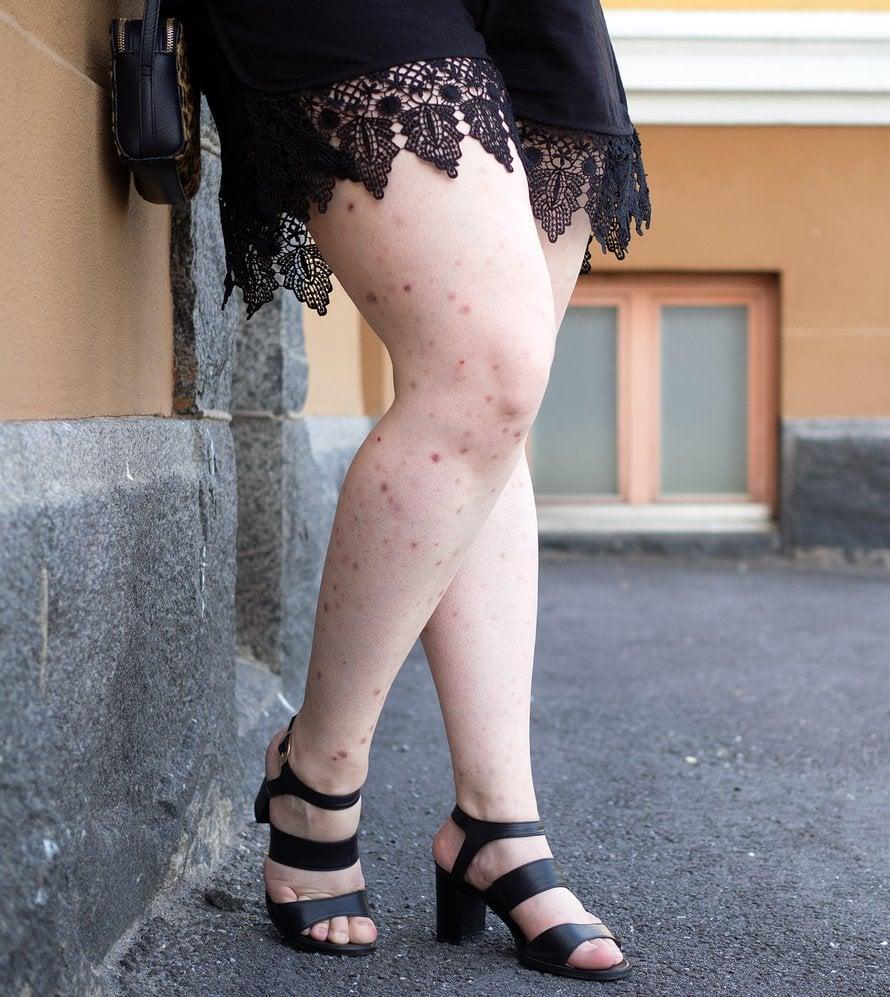 Tältä Veeran jalat näyttävät nyppimisen jäljiltä. Kuva: Veera Korhonen