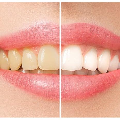 Hampaiden Oikominen Aikuisena
