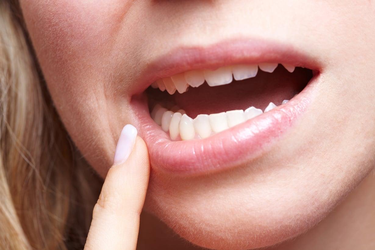 Afta suussa on tavallisin täysin vaaraton, mutta ikävä pikku vaiva. Kuva: Shutterstock