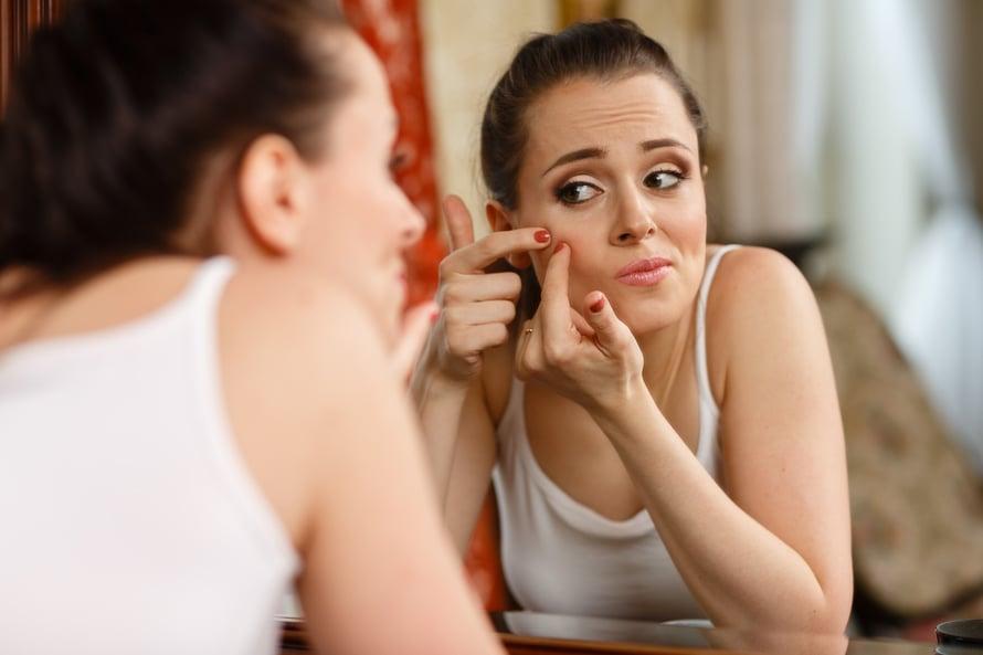 Älä älä! Finneistä ja mustapäistä pitäisi päästä eroon ilman kivuliasta ja epähygienista puristelua.