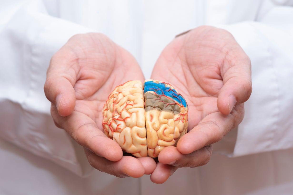 Aivoinfarktin saa joka vuosi noin 18 000 ja aivoverenvuodon noin 1 800 suomalaista. Kuva: Shutterstock