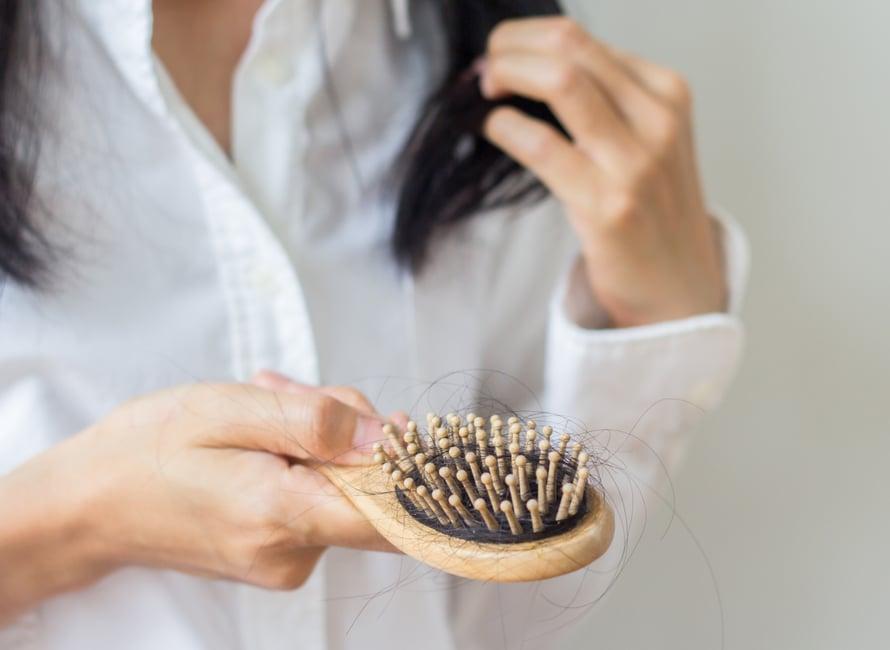 Uusien hiusten odottelu irronneiden paikalle kysyy hiukan kärsivällisyyttä.