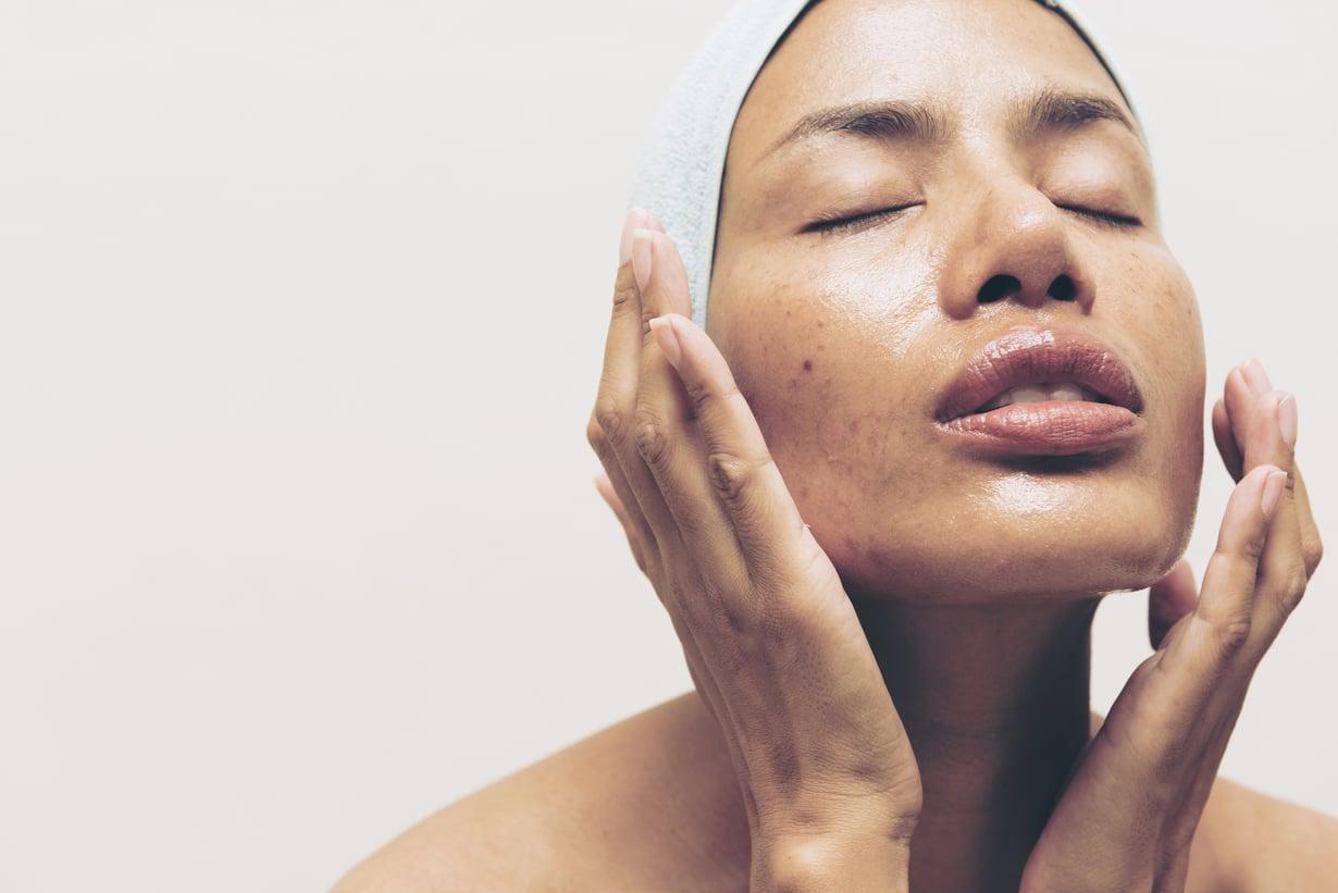 Rasvoittuvaa ihoa ei kannata jättää omilleen, sillä se kaipaa hellää hoivaa. Kuva: Shutterstock