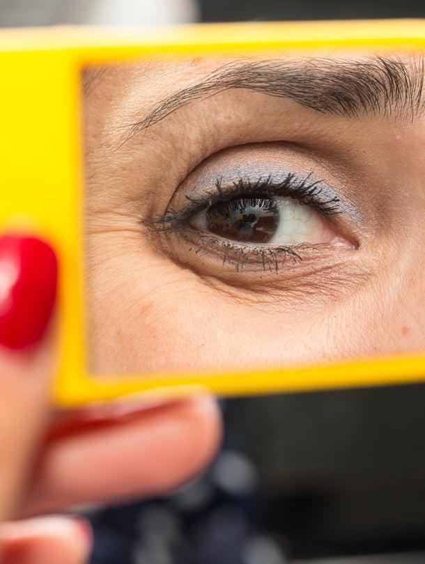 On yleinen harhaluulo, että tummat silmänaluset olisivat aina selvä merkki väsymyksestä.